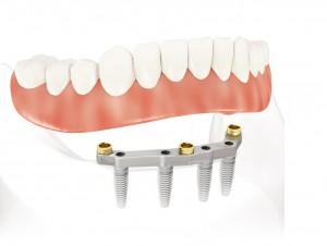 Dental Lab-Service-Quality-Portland-OR-Artisan-Dental-Laboratory-ImplantsMilled_Bar_Locators_NobelReplace_2